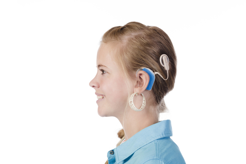 adult cochlear implant testimonals