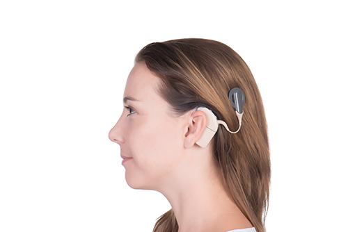 child need cochlear implant